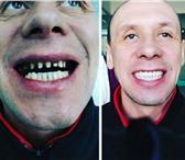 Изображение в Красота и здоровье Стоматологии Лечение зубов в Хэйхэ имеет целый ряд преимуществ✔Во-первых, в Москве 1500