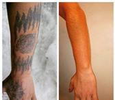 Изображение в Красота и здоровье Косметические услуги - Лазерное удаление татуировок и татуажа, в Уфе 0