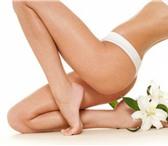 Фото в Красота и здоровье Косметические услуги Предлагаю косметологические услуги. Биоэпиляция, в Рязани 0